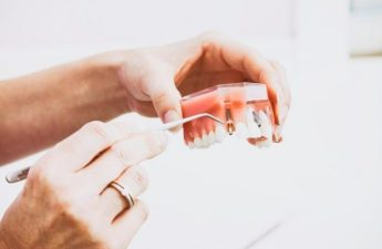 Cara Mencegah Gigi Berlubang Agar Tidak Semakin Membesar